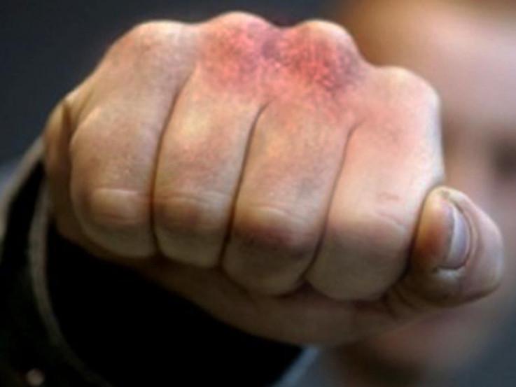 Поліцейські встановлюють обставини бійки у Виноградові