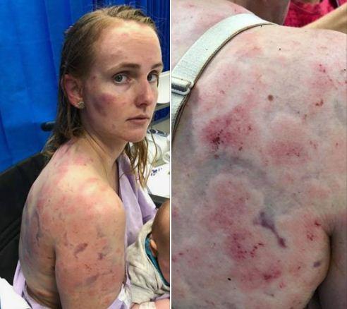 Град в Австралії мало не забив молоду жінку до смерті (фото, відео)
