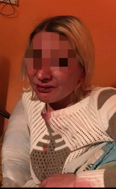 Бійка у кафе в селі Королево: раніше засуджений житель побив працюючих і відвідувачів закладу