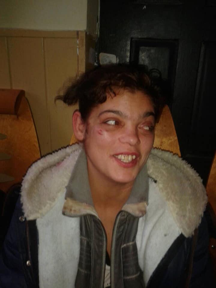 Увага розшук: за підозрою у вбивстві жінки розшукується мешканка міста Виноградів (ФОТО)
