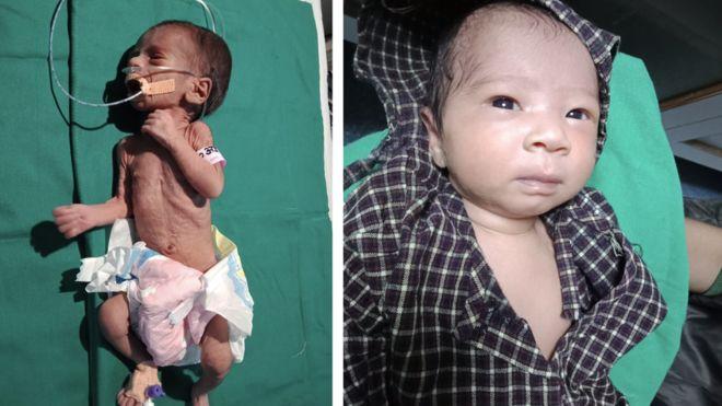 Дитину живцем поховали у глечику під землею: вона вижила (ФОТО)