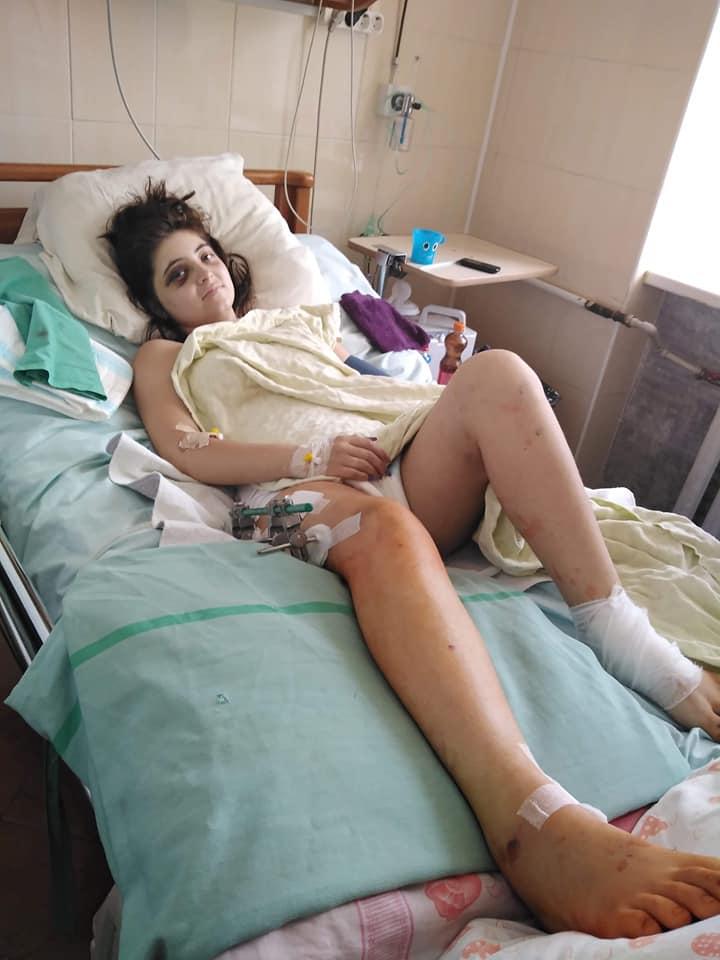 Потерпілій у пекельній аварії жительці Виноградова збирають на лікування