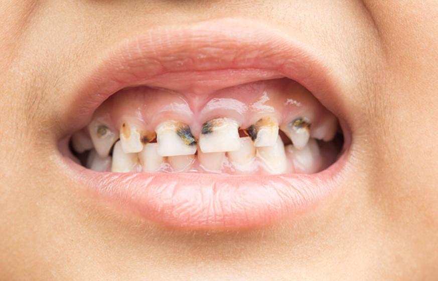 Найпоширеніші дитячі проблеми з зубами: причини захворювання та методи лікування